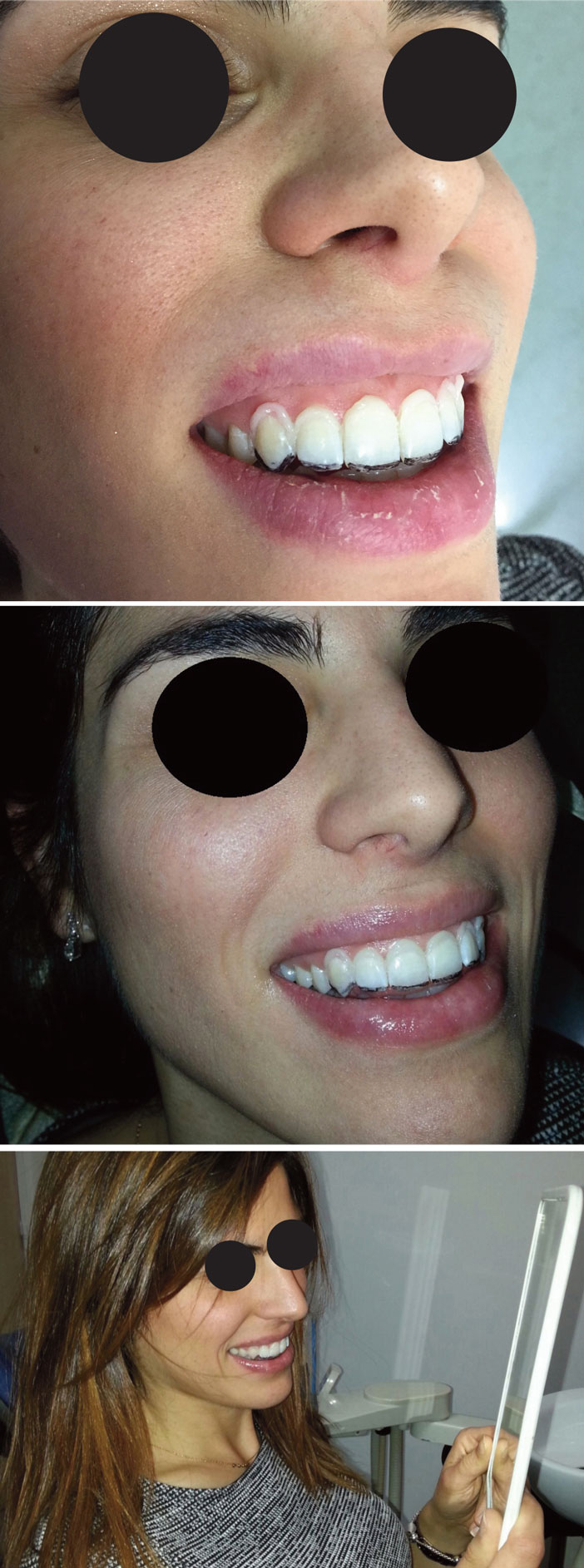 masque-en-composite