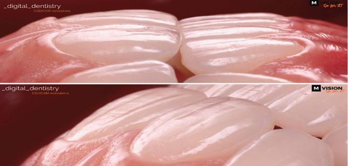 morphologie-naturelle-des-protheses-usinees