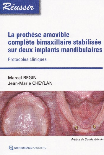 prothese-amovible-complete-bimaxillaire-stabilisee