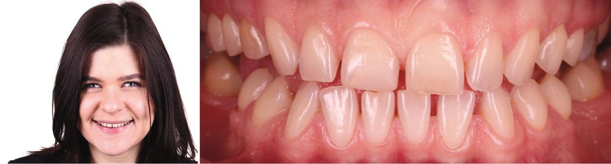 situation-intra-orale-pre-opératoire
