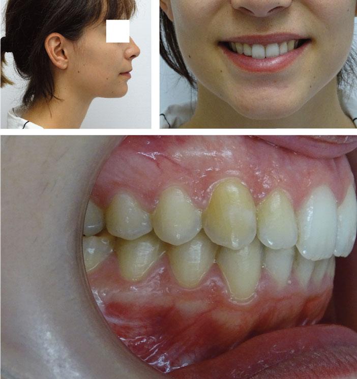visage-et-occlusion-en-fin-de-traitement