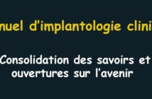 Manuel-d-implantologie-clinique