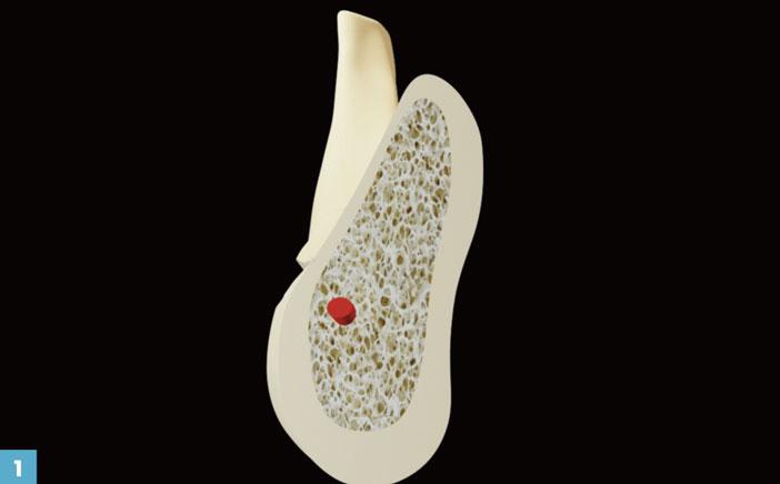 absence-des-dents-posterieures-mandibulaires