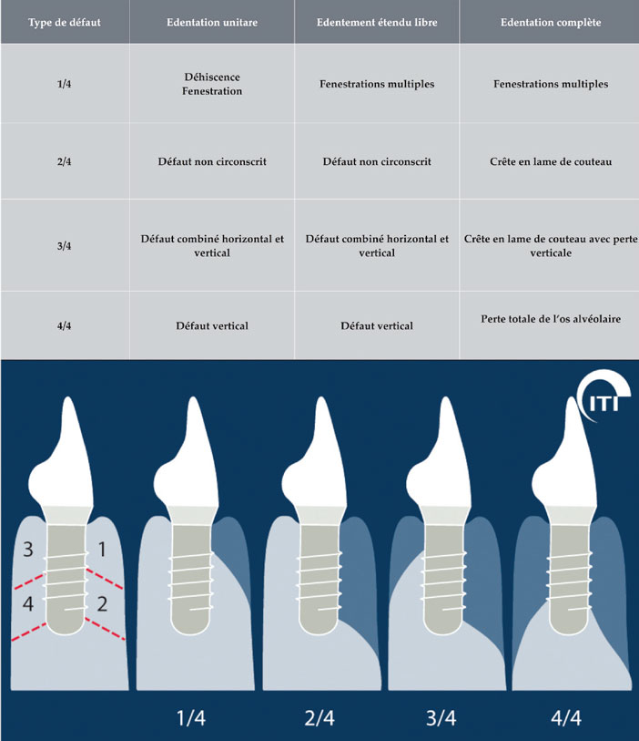 classification-de-resorption-osseuse
