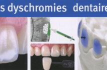 dyschromies-dentaires