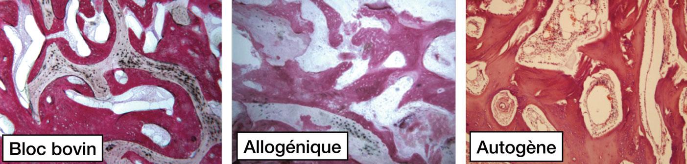 histologie-apres-greffe-avec-bloc-osseux