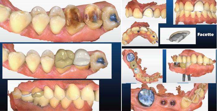couronnes-transvissees-sur-implants-en-Emax