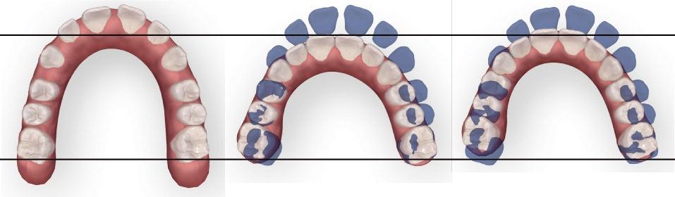 fermeture d espaces au maxillaire
