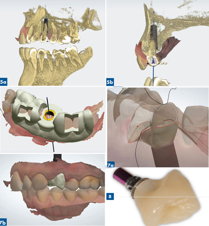 guide chirurgical