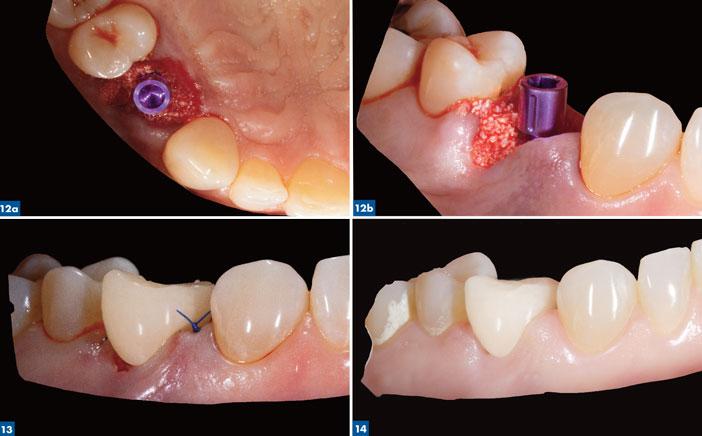mise-en-place-d-un-implant-CAMLOG