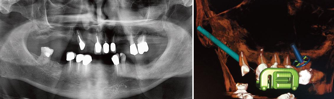 radiographie-panoramique-pre-operatoire