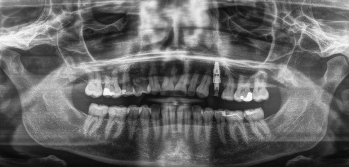radiographie post-operatoire