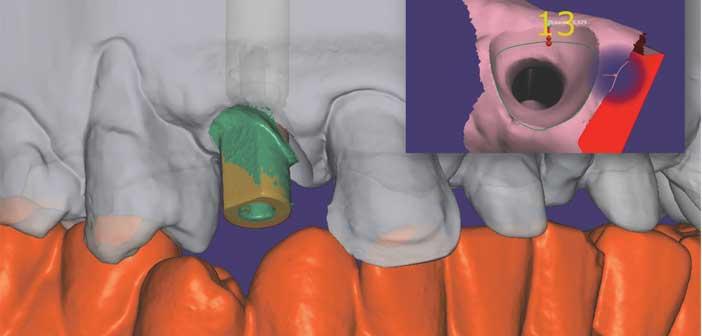 Eclaircissement-et-stratification-anterieure-au-composite