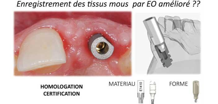 empreinte-optique-intra-orale