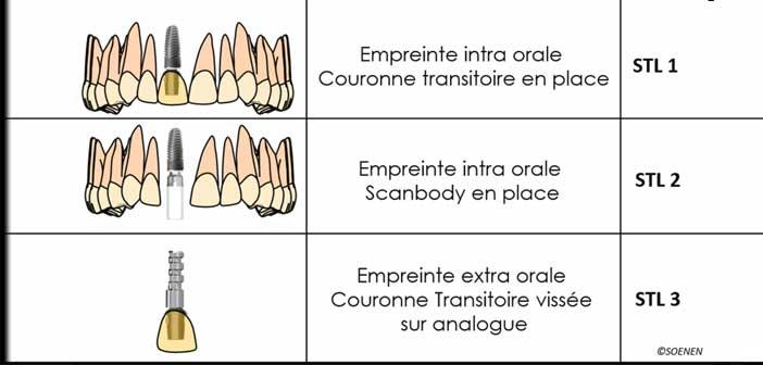 schema-explicatif-du-protocole