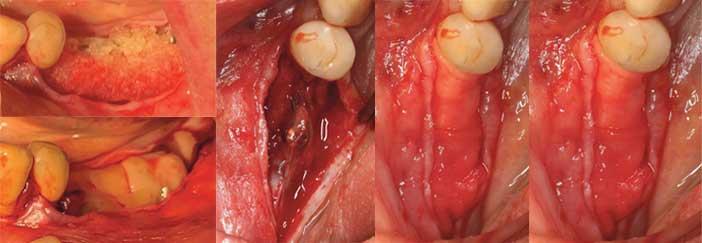 sous-la-plaque-et-le-recouvre-legeremen