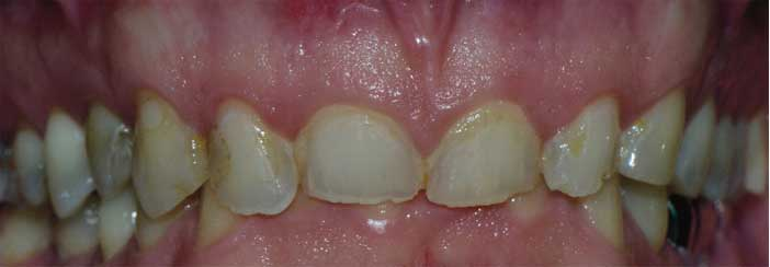 traitement-orthodontique