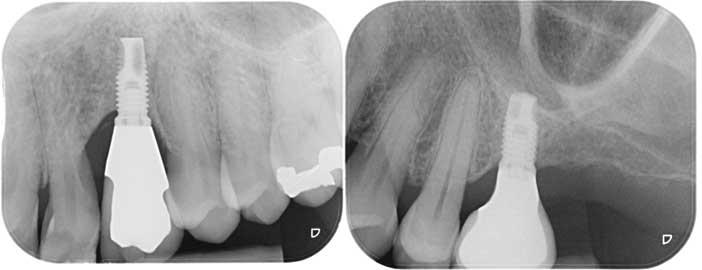 implantes-quatre